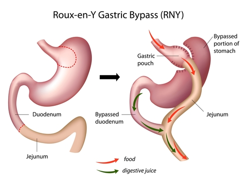 weight loss procedures gastric bypass